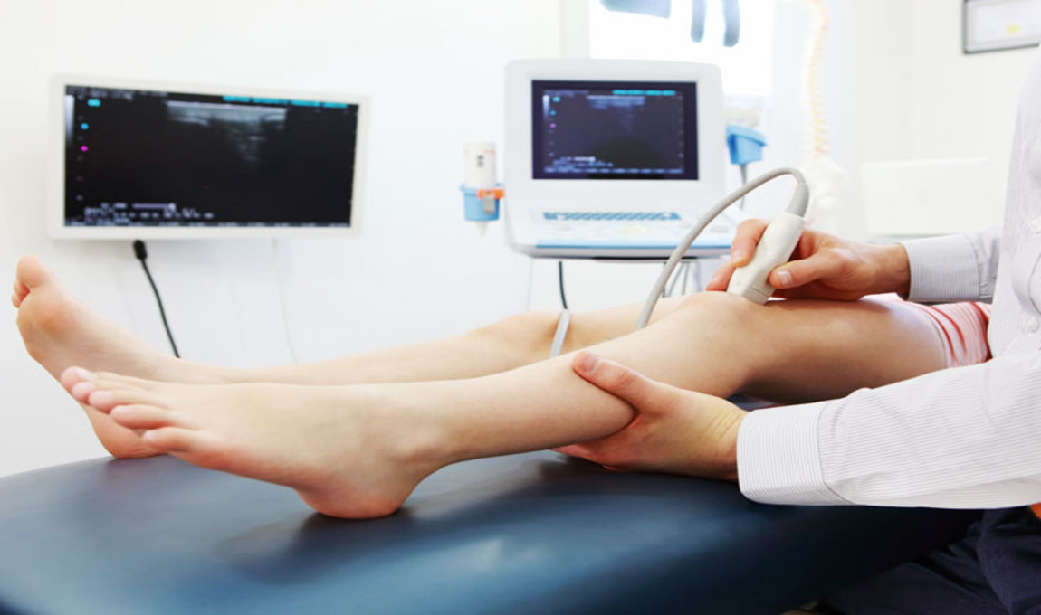 Lower Limb Arti and Doppler, Available at CDC